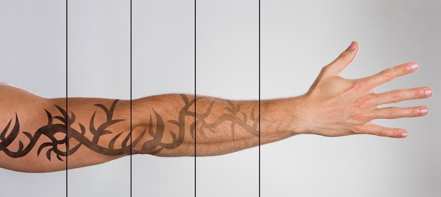 Dövme izleri çıkartma